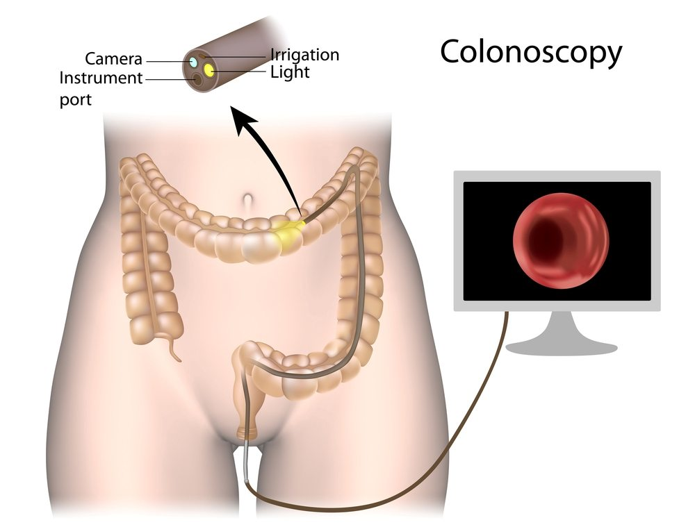 Endoscopycolonoscopy General Surgeon Palmer Ak Dr Taylor